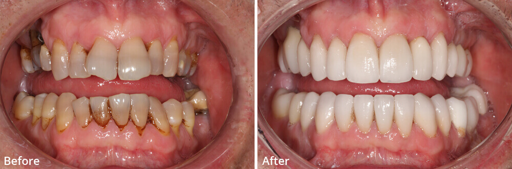 Russell D. Borth DDS does Porcelain Veneers